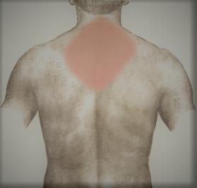 back-pain-2